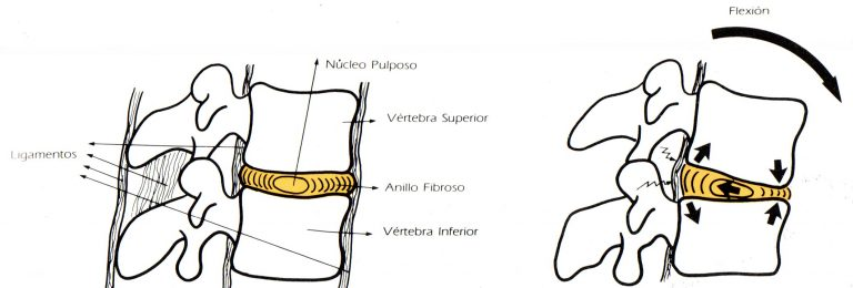 IBV grafico 2